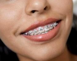 Ортодонтические аппараты: общие сведения